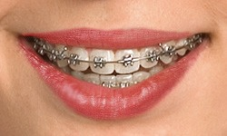 self-ligating-braces (1)