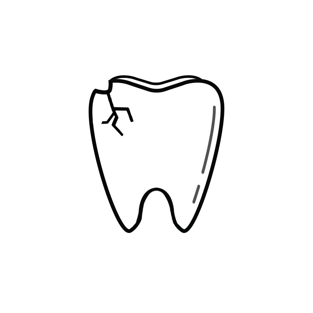 Family Dentist Arlington | I Chipped a Tooth! What Can I Do?